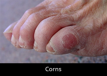 pic-corns Nail & Skin