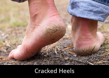 pic-cracked-heels General Podiatry
