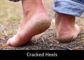 pic-cracked-heels Nail & Skin