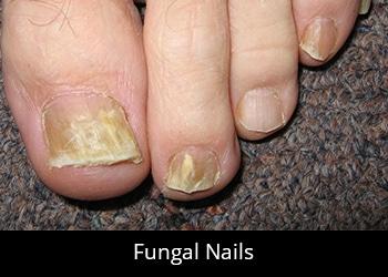 pic-fungal-nails Nail & Skin