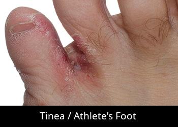 pic-tinea-athletes-foot Nail & Skin