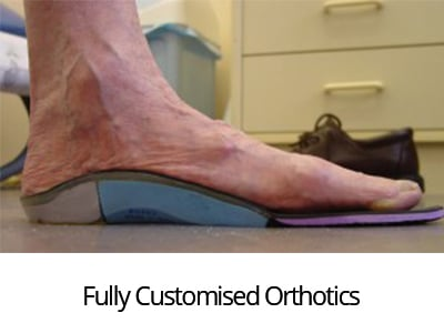 Fully-Customised Needing Orthotics?