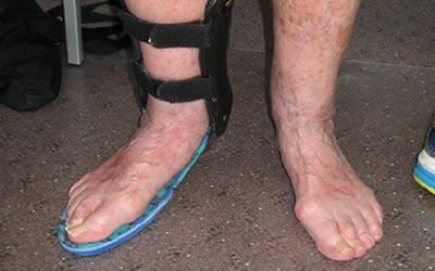 ankle_400 Customised orthotics