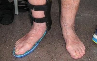 ankle_400 Customised orthotics