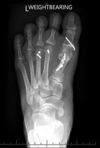 Bunion-surgery-5-e1570756383453-203x300 Bunion / Hallux Valgus