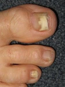 Fungal-nail-2-225x300 Tinea / Athlete's Foot