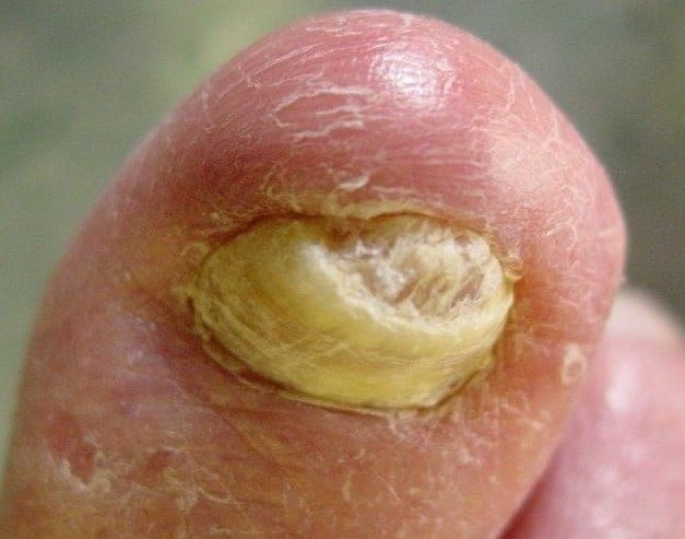 Thickened-nail-2 Fungal Nails