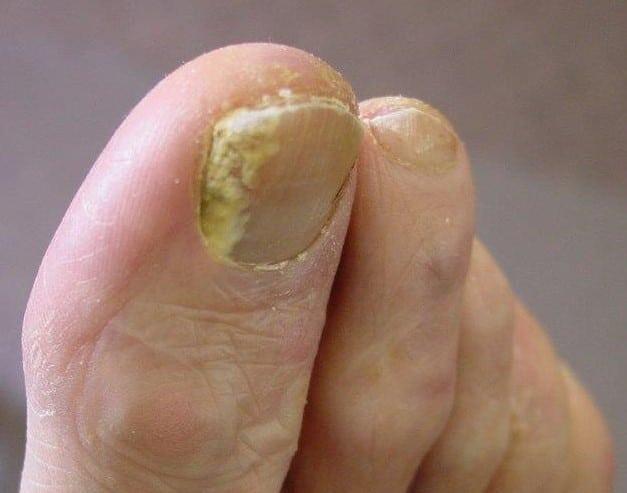 nail-3 Fungal Nails