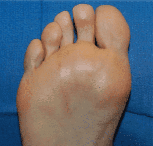 12-mths-post-neuroma-e1589774656481-300x285 Neurectomy Surgery