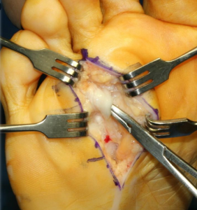 Neurectomy-incision-on-the-bottom-op-282x300 Neurectomy Surgery