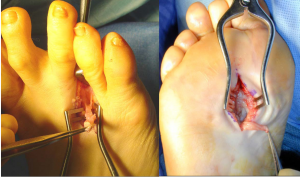 Neurectomy-incision-on-the-top-of-the-foot-300x177 Neurectomy Surgery