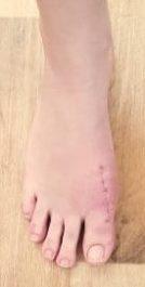 Bunion-after-e1593138382552 Bunion / Hallux Valgus