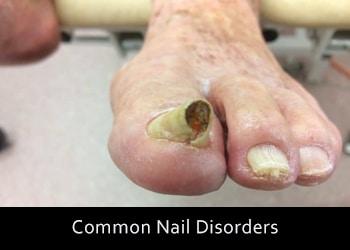 nail-disorders Nail & Skin