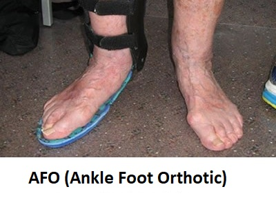 Ankle-and-Foot-Orthotics Needing Orthotics?