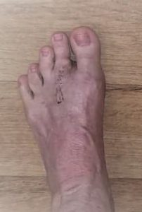 afterplantarplaterepair2nd-e1601539199957-202x300 Hammer Toes / Crooked Toes