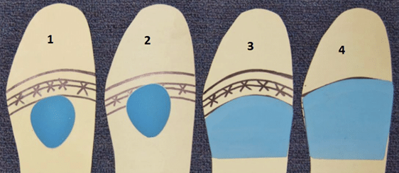Picture1 Metatarsal dome / pad how it helps forefoot pain