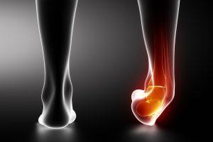 ankle-sprain-2-min-300x200 Ankle