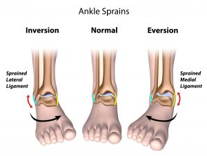 ankle-sprains-different-types-1-min-300x226 Ankle