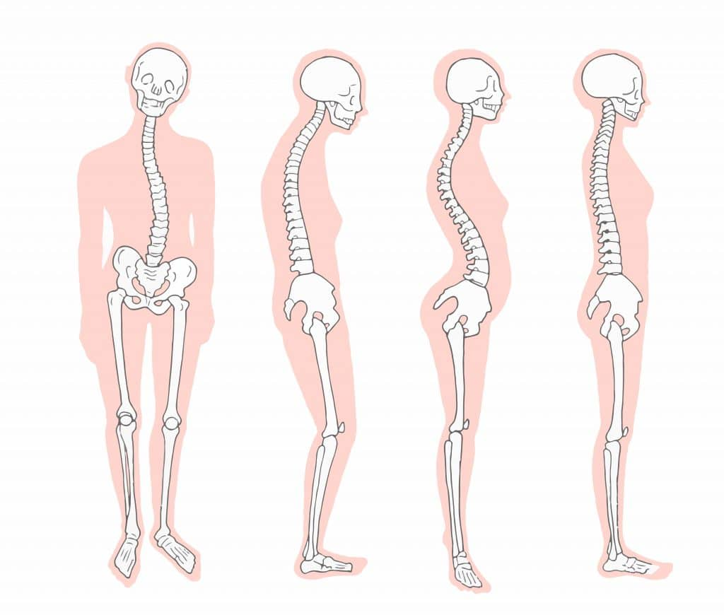 different-postures-1024x870 Hip & Back