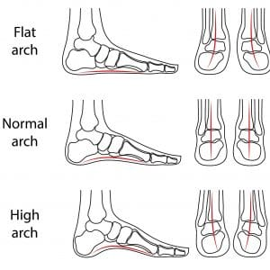 foot-types-2-1-300x300 Foot