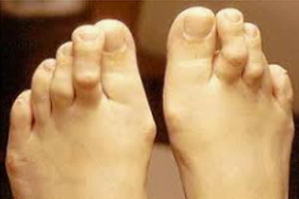 p-2-1 Foot Deformities