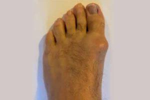 Stiff-Big-Toe-Hallux-Limitus-in-Perth-300x200 Hallux Limitis Rigidus / 1st MPJ Big Toe Joint Arthritis in Perth