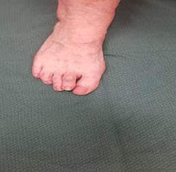 hamer-toe Hammer Toes / Crooked Toes
