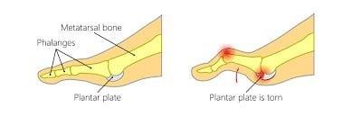 PLANTAR-PLATE-TEAR Plantar plate tear / rupture treatment in Perth